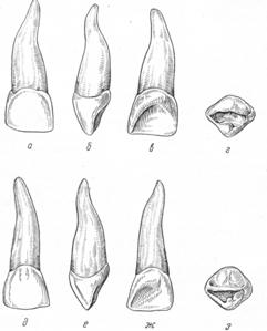 Временные (выпадающие) зубы